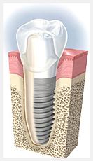 骨造成治療(βーTCP)