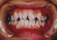 歯並び治療 治療前