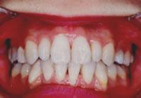 歯並び治療 治療後